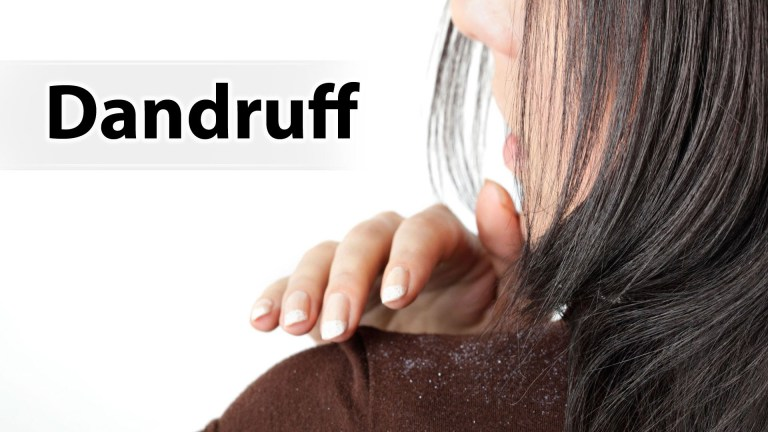 How to Get Rid of Dandruff: 4 Miracle DIY Hacks for Dandruff Removal