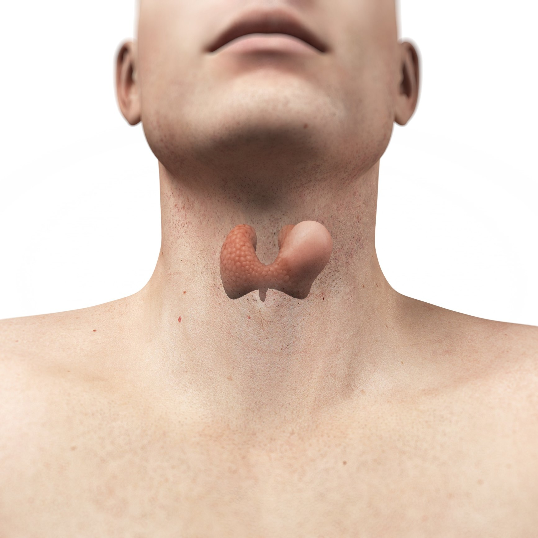 Thyroid Gland Neck Pain