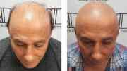 scalp micropigmentation men
