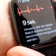 Apple Watch erstellt EKG