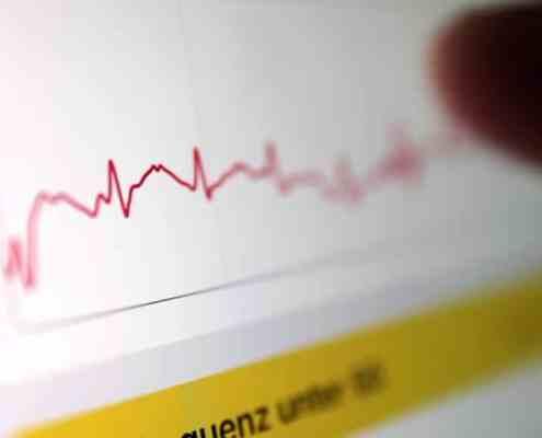 EKG App