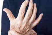 Arthritis Schmerzen Entzündungen in Gelenken