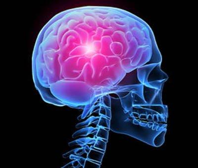 Schmerzen Migräne Kopf