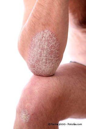 psoriasis schuppenflechte