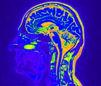 CGRP-Hemmer blockerien Migräne ohne gefäßverengende Wirkung