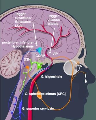 Die hypothetische Rolle des inferioren posterioren Hypothalamus bei Clusterkopfschmerzen
