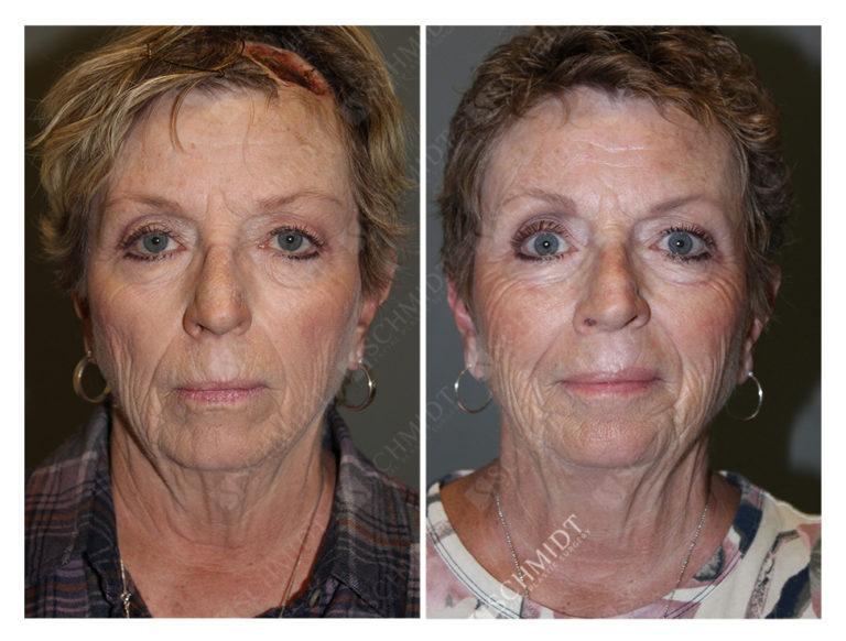 Skin Cancer Archives | Schmidt Facial Plastic Surgery