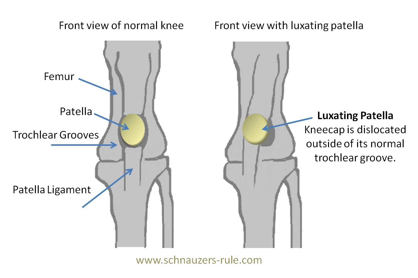 hight resolution of luxating patella means that the patella is moving out of its normal orientation