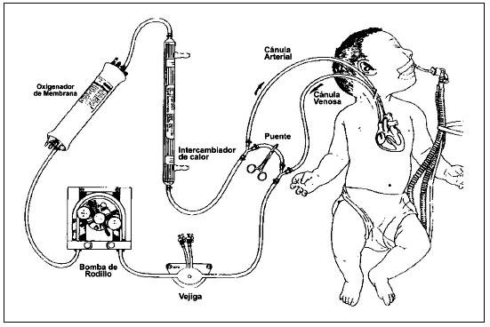 Oxigenación con membrana extracorpórea neonatal-pediátrica
