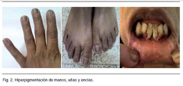 Resultado de imagen para addison piel