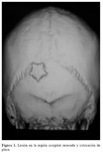 Granuloma eosinfilo en el hueso occipital y la silla turca del mismo paciente