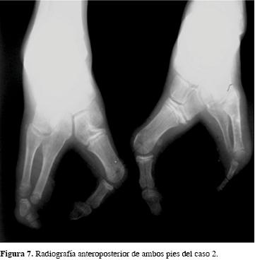 Resultado de imagen de Ectrodactilia