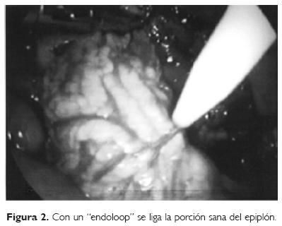 Infarto segmentario idioptico del epipln mayor resuelto