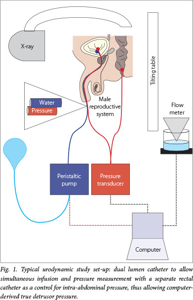 Simple Diagram Of The Urinary System The Paediatric Neuropathic Bladder