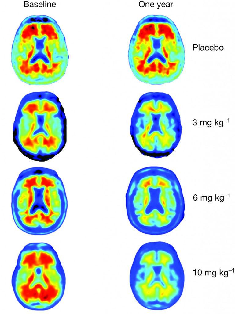 amyloid-plaques-aducanumab