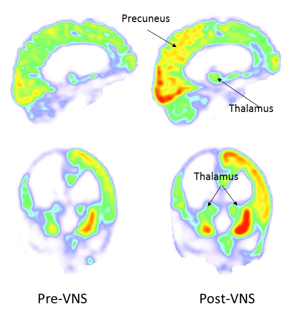 before and after vns brain scans activity