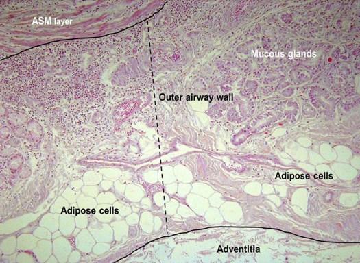 жировая ткань 2