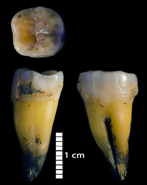 Second lower molar of a modern human found in Bacho Kiro cave. (MPI-EVA/Rosen Spasov)