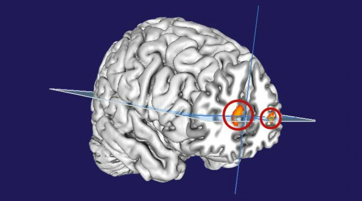 Scientists May Have Found The Part of The Brain That ...