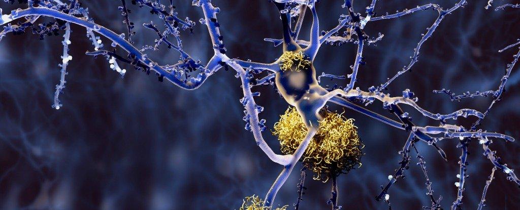 Alzheimer's disease | sciencesprings