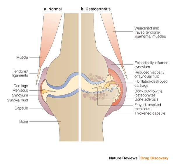 Osteoarthritis degeneration