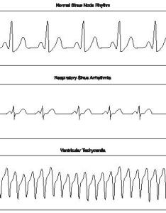 Electrocardiogram rhythm charts reproduced by permission of the gale group also body used water process system waves rh scienceclarified