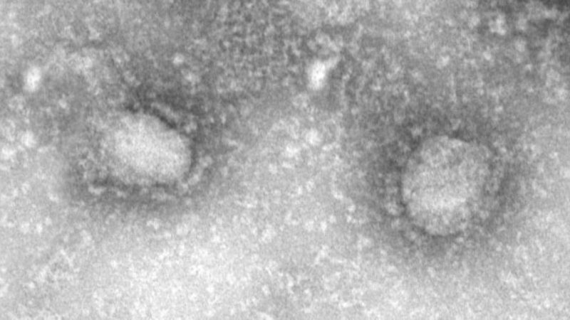 How the new coronavirus stacks up against SARS and MERS   Science News