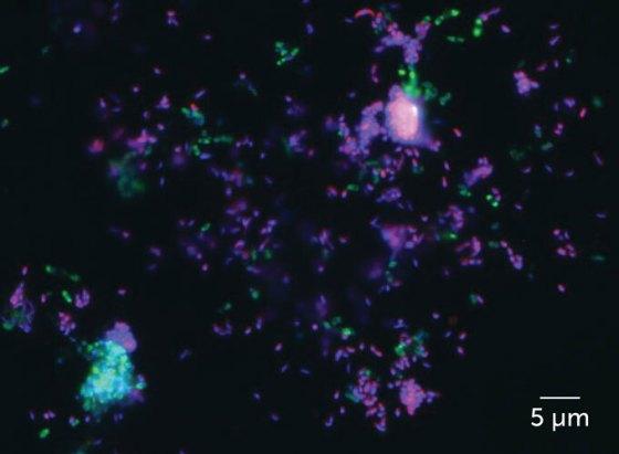 Epifluorescence microscope image of manganese bacteria