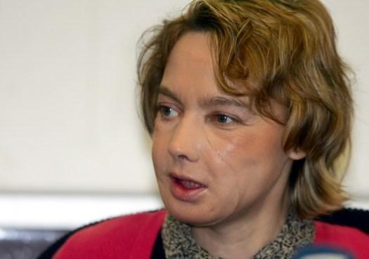 Isabelle Dinoire, défigurée par son chien, bénéficie pour la première fois au monde d'une greffe partielle du visage, lors d'une conférence de presse, le 6 février 2006 à Amiens (AFP/Archives - DENIS CHARLET)