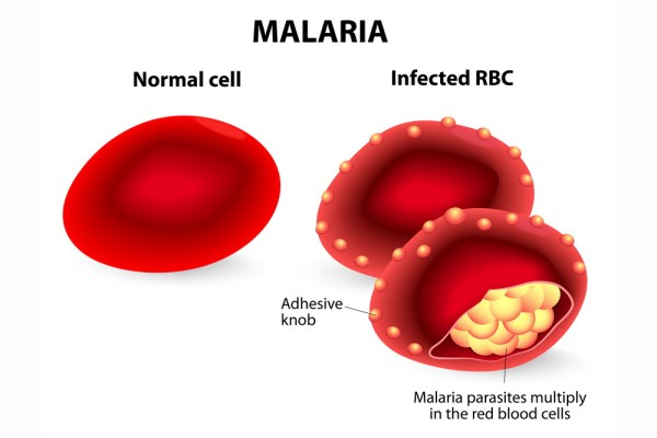 Malaria parasite growth in RBC