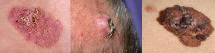 """Van links naar rechts: basaalcelcarcinoom - plaveiselcelcarcinoom - melanoom<br /> Afbeeldingen: <a href=""""http://www.huidziekten.nl"""" rel=""""noopener"""" target=""""_blank"""">www.huidziekten.nl</a>"""