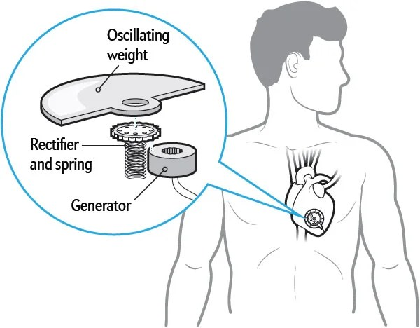 Pacemaker Powered by Heartbeats Has Watch Parts