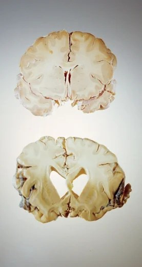 brain with Alzheimer's disease