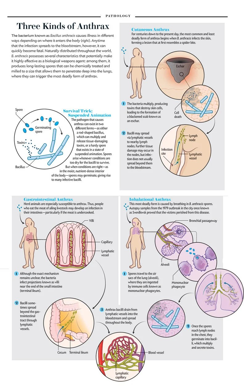 hight resolution of anthrax into the body diagram