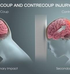 understanding hematomas and traumatic brain injury [ 1920 x 1080 Pixel ]