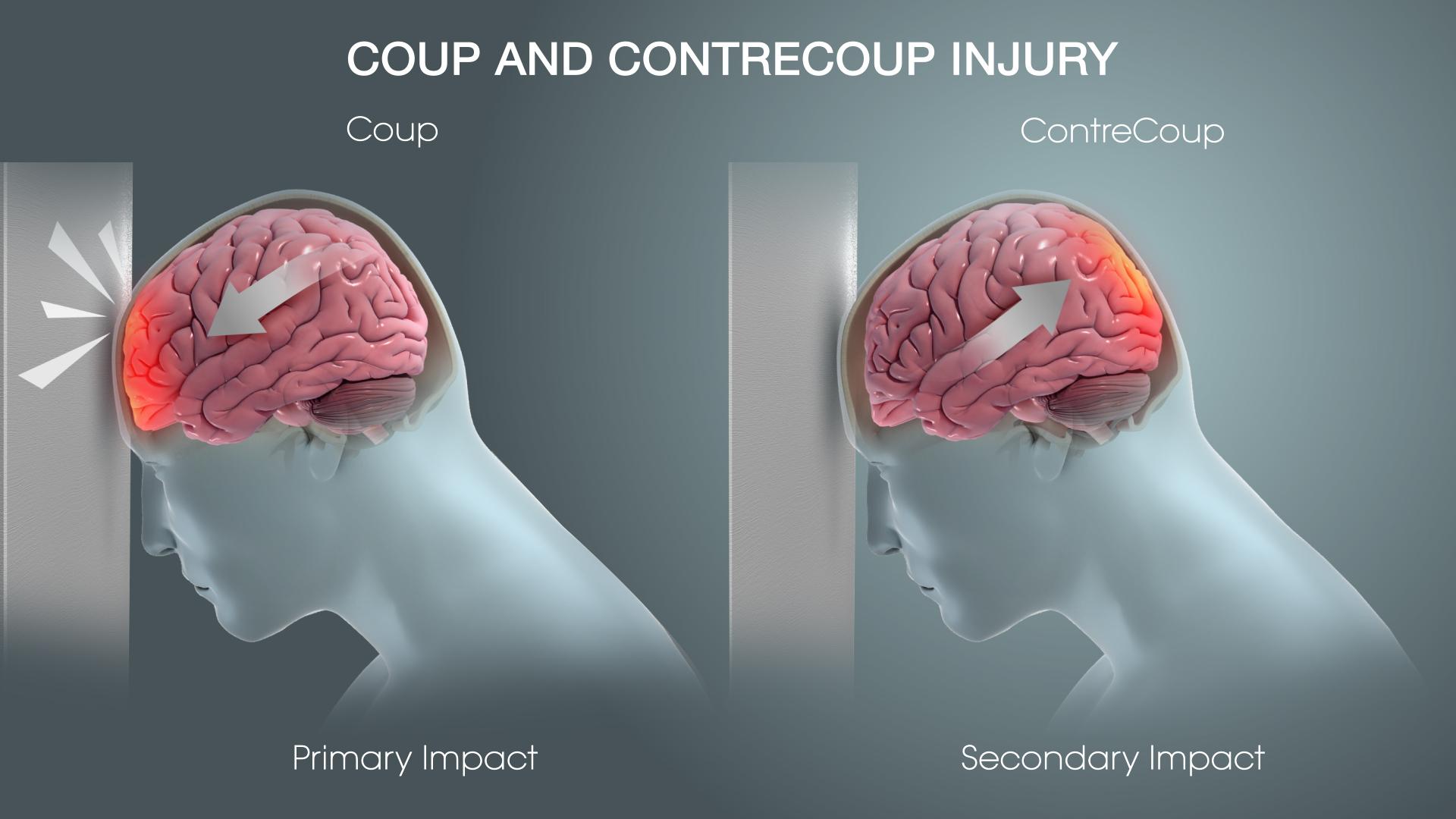hight resolution of understanding hematomas and traumatic brain injury