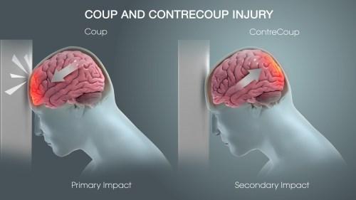 small resolution of understanding hematomas and traumatic brain injury