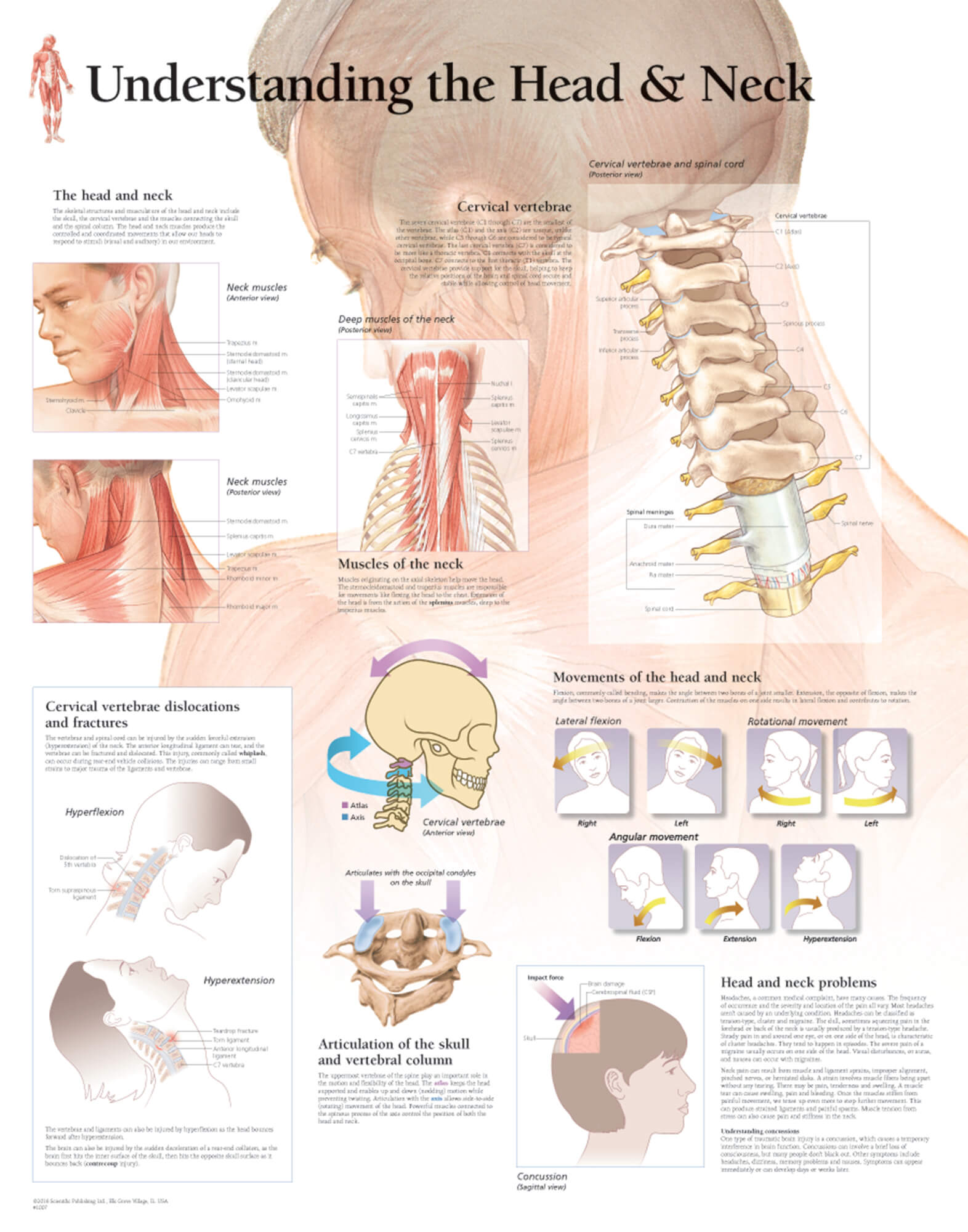 hight resolution of head and neck whiplash anatomy