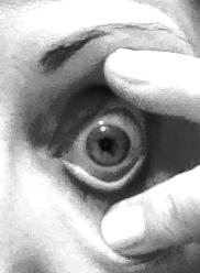Control of your eye lids  ScleralLensAssociatescom
