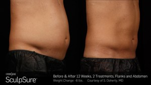 sculpsure san antonio - Sculpt Away