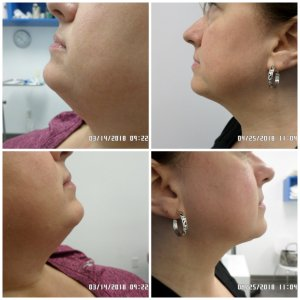 Sculpt Away San Antonio beauty services