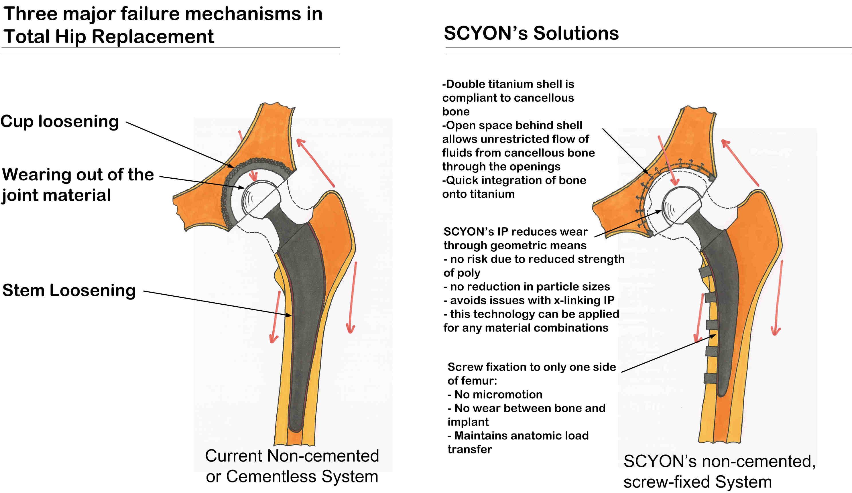 Scyon orthopaedics - hip replacement surgery implants