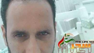 """صورة """"الدكتور عدنان عبد الرحيم """"زراعة الأسنان تعتبر من أفضل التعويضات عن فقد الأسنان"""