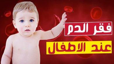 """صورة فقر الدم عند الأطفال """"الأسباب ..الأعراض..العلاج وطرق الوقاية"""""""