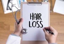 صورة أهم أسباب تساقط الشعر والتحاليل الخاصة به
