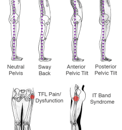 if there is right or left hip dominance there is usually pain in the opposite hip or quadratus lumborum ql sciatica pain or stiffness in the lower back  [ 800 x 1181 Pixel ]