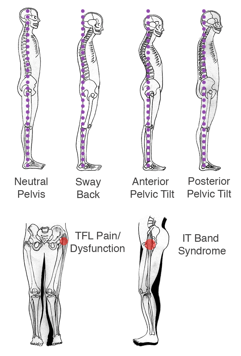 medium resolution of if there is right or left hip dominance there is usually pain in the opposite hip or quadratus lumborum ql sciatica pain or stiffness in the lower back