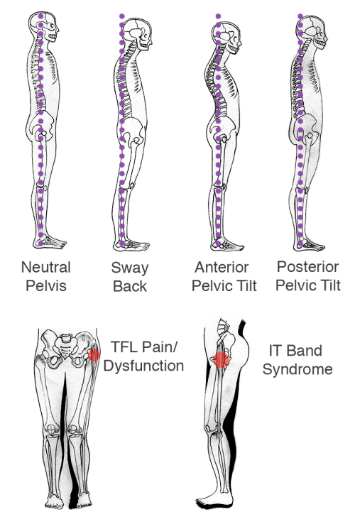 small resolution of if there is right or left hip dominance there is usually pain in the opposite hip or quadratus lumborum ql sciatica pain or stiffness in the lower back