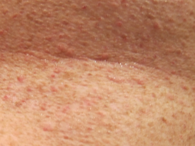 Seaweed Part II  Grovers Skin Rash By Richard Lentz