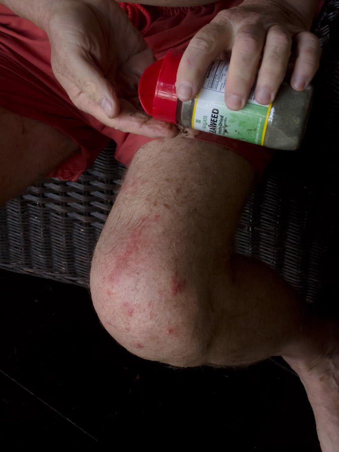 High Histamine Level Rash